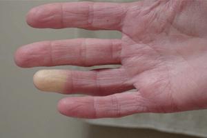 beyaz parmak hastalığı